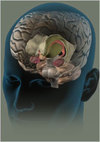 Brain_190
